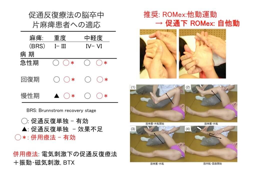 促通反復療法の適応